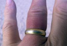 Jak zdjąć pierścionek ze spuchniętego palca?