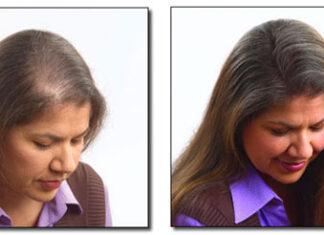 Zalety klamerkowej metody zagęszczania włosów